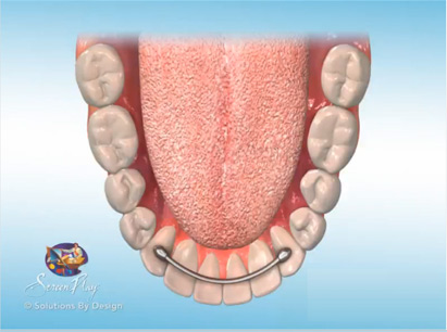 Retainers - Bonded Lingual Retainer