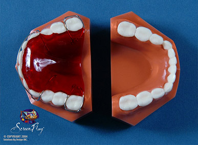 Retainers - Hawley Retainer